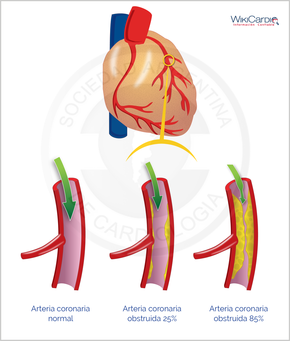 what is cerebral arteriosclerosis