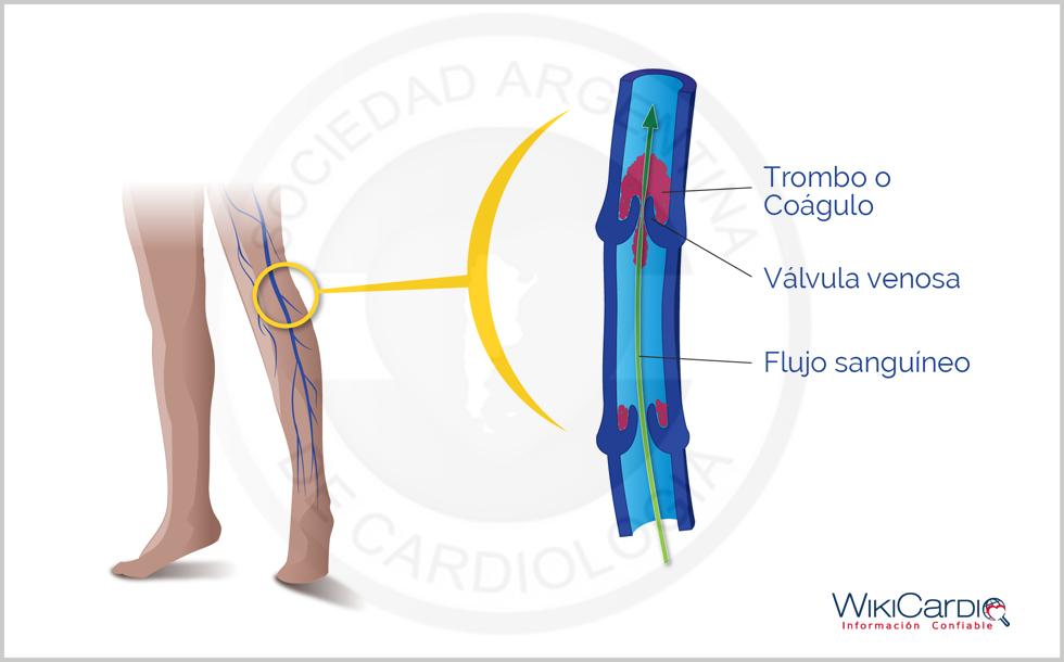 La condensación de las venas de los pies