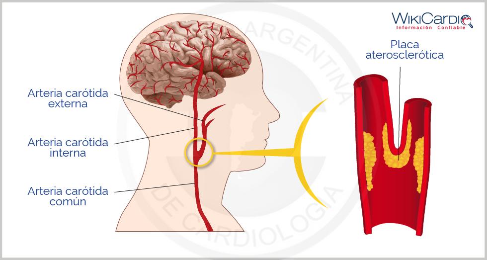 Enfermedad de las arterias carótidas - WikiCardio