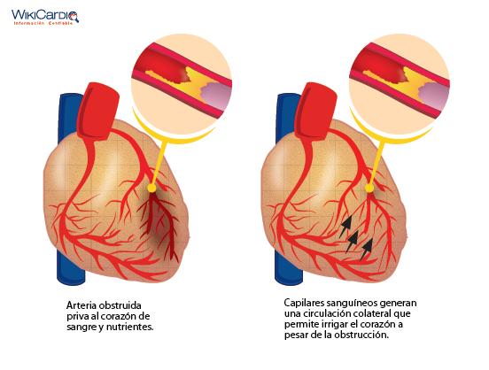 Circulación colateral: Cómo mejorar la irrigación del corazón